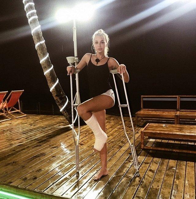 У Анастасии Стецевят перелом ноги