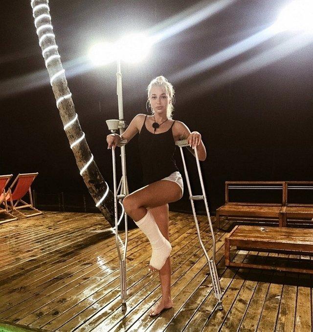 Анастасии Стецевят предстоит операция на сломанной ноге