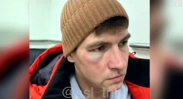 Дмитренко получил фингал от супруги, а не от Шабарина