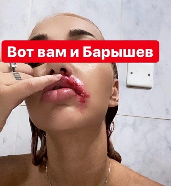 Никита Барышев нанес Насте Стецевят увечья