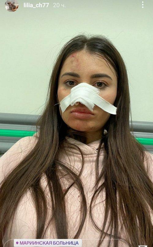 Лилия Четрару в поисках пластического хирурга